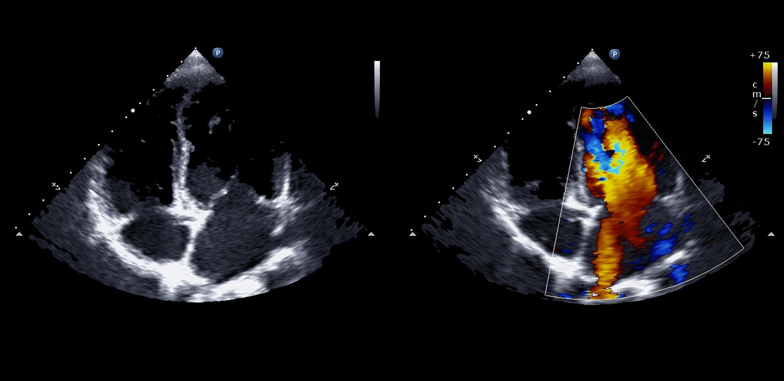 Image from echocardiography scan at Cooley Dickinson Hospital, 30 Locust Street, Northampton, MA 01060.