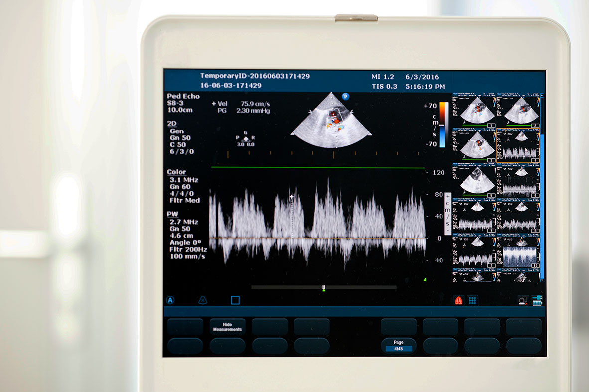 Echocardiography | Cooley Dickinson Radiology & Imaging