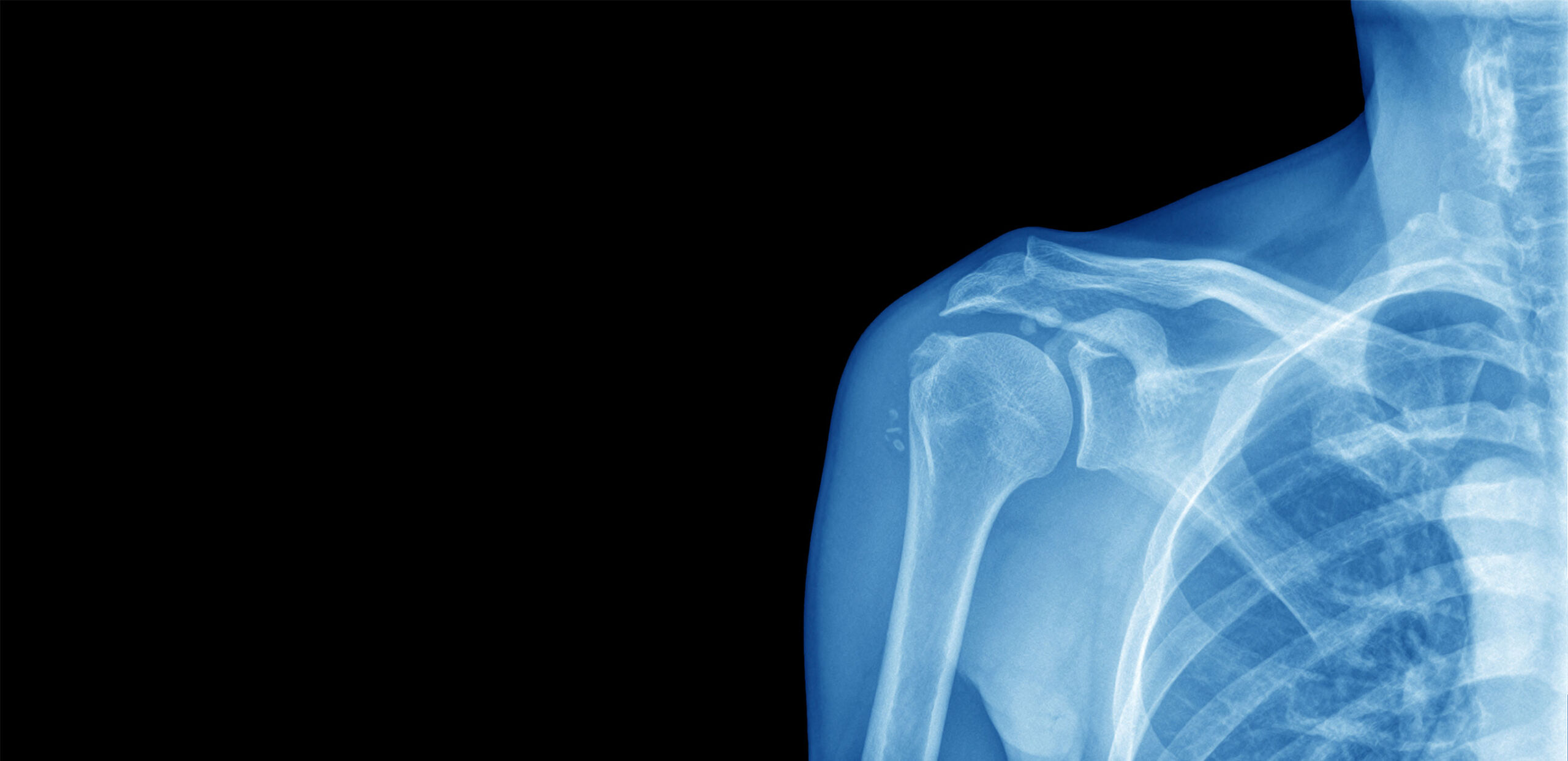 X-ray of human shoulder joint, Cooley Dickinson Hospital, 30 Locust Street, Northampton, MA 01060.