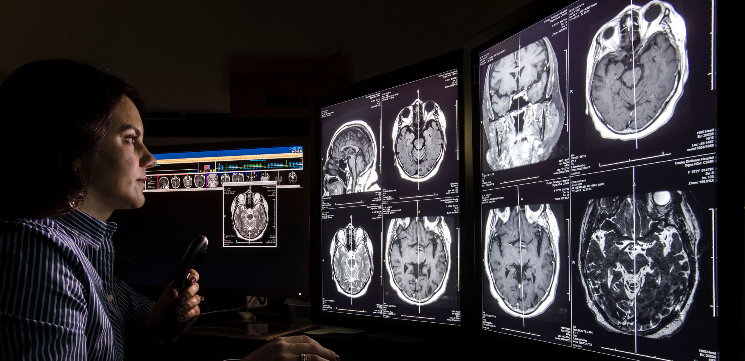 Radiologist Brooke Breen, MD, dictates notes while reviewing MRI scans of a patient's brain at Cooley Dickinson Hospital, 30 Locust Street, Northampton, MA 01060.