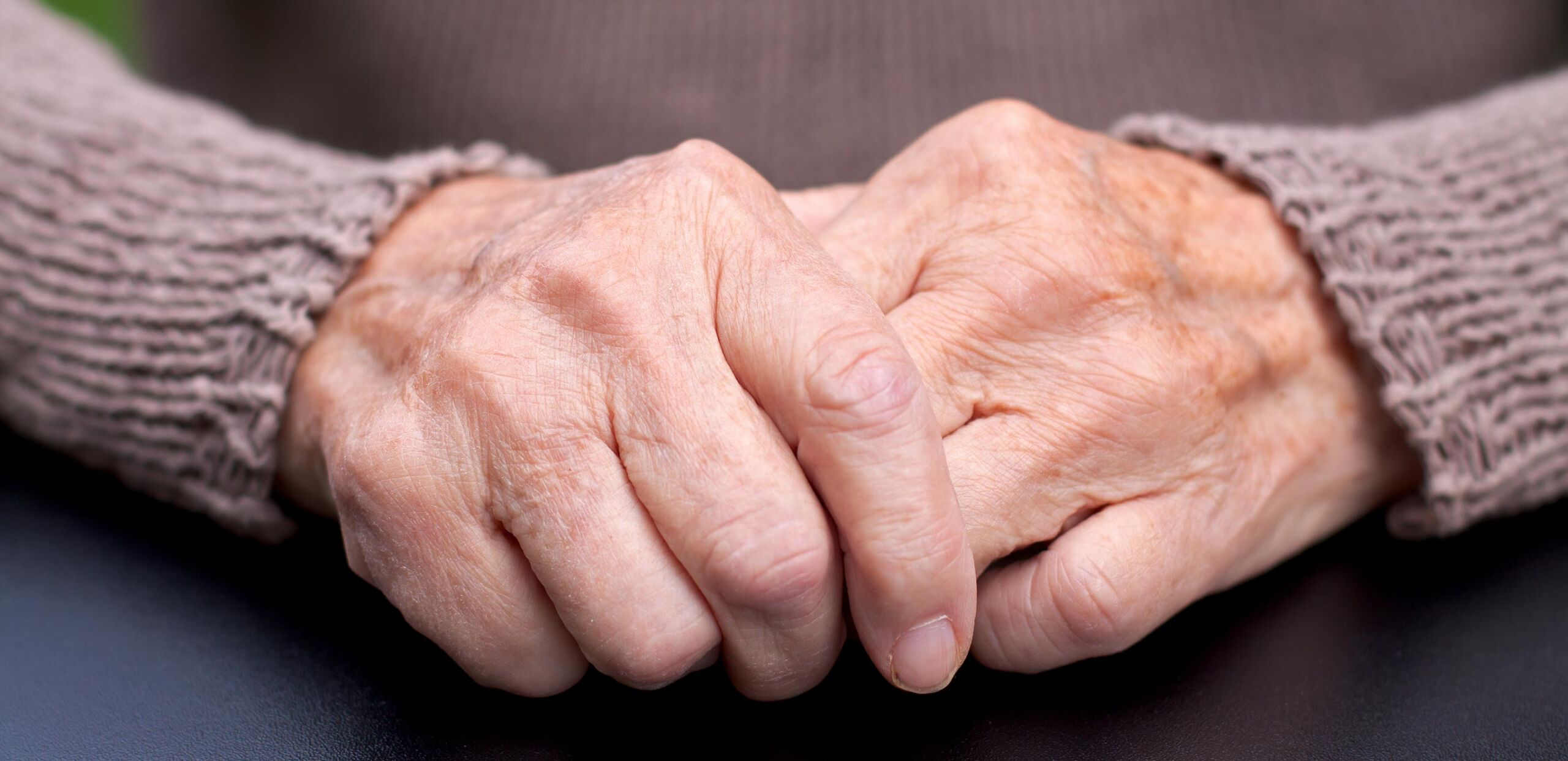 Elderly person's hands, Cooley Dickinson Medical Group Rheumatology, 22 Atwood Drive, Northampton, MA 01060.