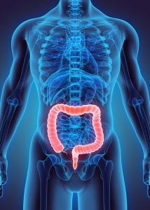 Rates of colorectal cancer have risen considerably in patients under 50 years old.